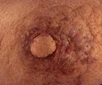 pagets disease of the breast pictures  56377