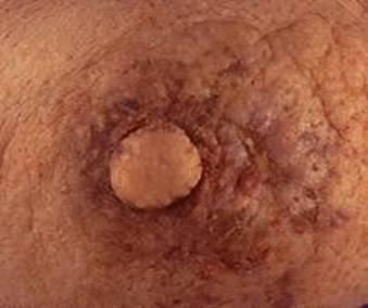 New Kind Of Breast Cancer Itrustallah S Blog Premium